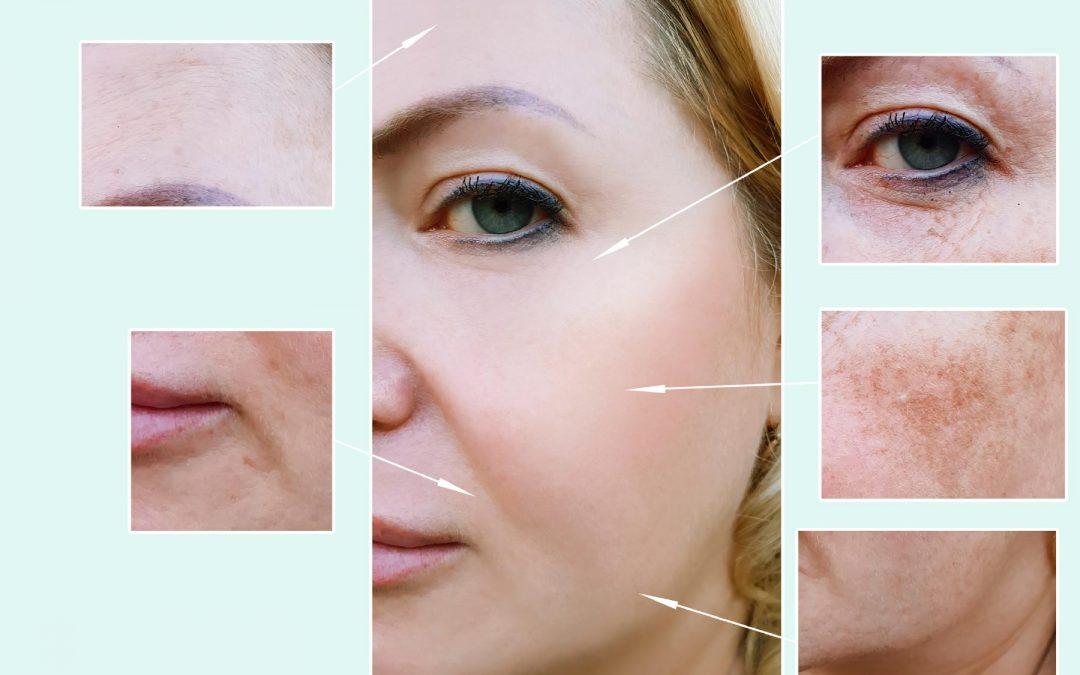 Age Spots & Hyperpigmentation - Removal Beauty Treatments