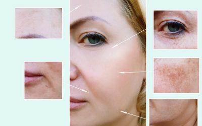 Age Spots & Hyperpigmentation – Removal Beauty Treatments