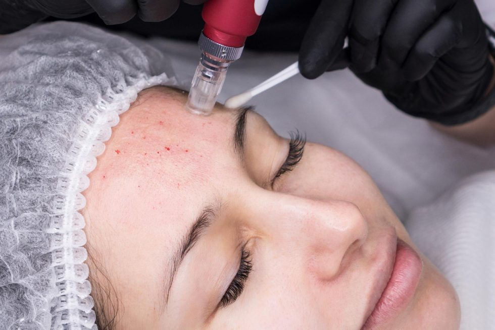 Skin Needling or Microneedling – Benefits and Side Effects